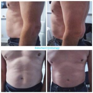 Cryo T-Shock Results